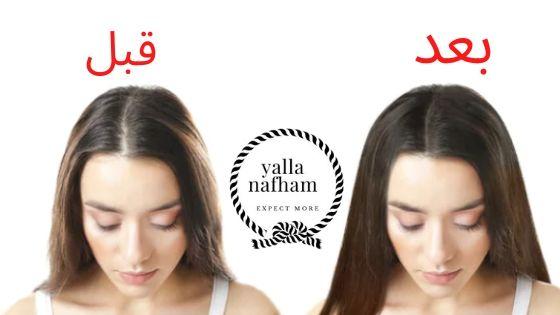 خلطات لتكثيف الشعر الخفيف مجربه أفضل الخلطات لتقوية الشعر و تكثيفة